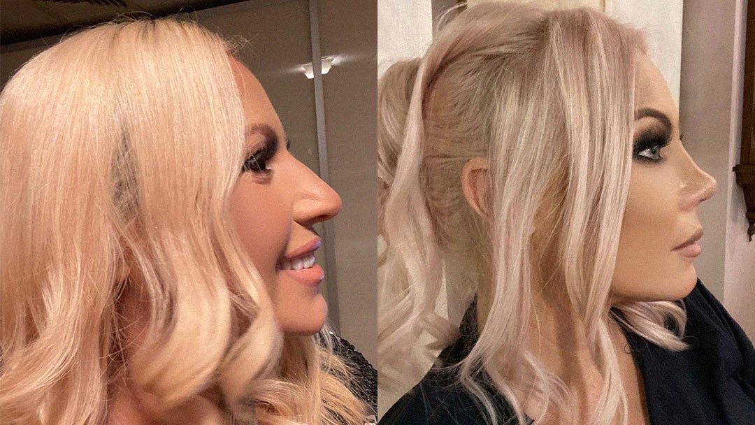 Камелия показа носа си преди и след операцията